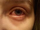 Infección ojos